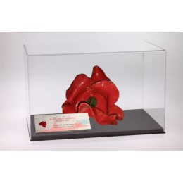 Tower of London Poppy Case